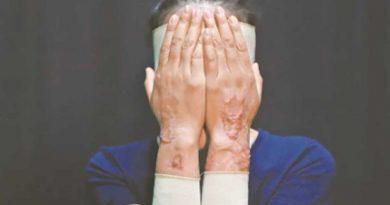 El ataque con ácido a María Elena era para asesinarla: fiscal Vasconcelos
